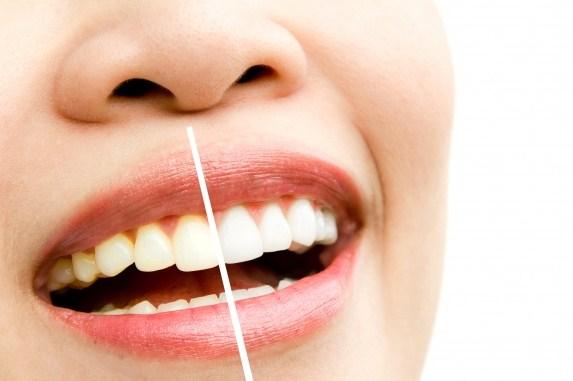 limpieza dental en Pamplona