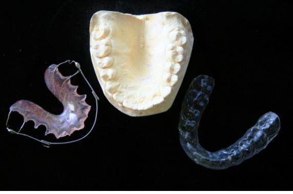 retenedores dentales removibles