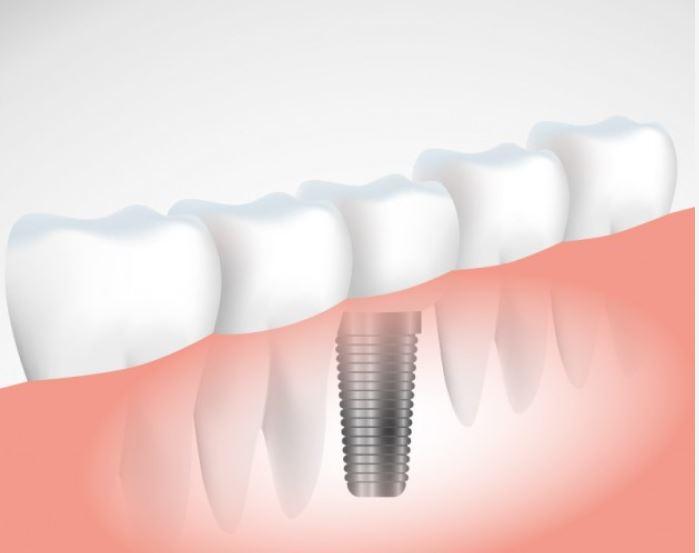 Prótesis híbridas sobre implantes en Pamplona